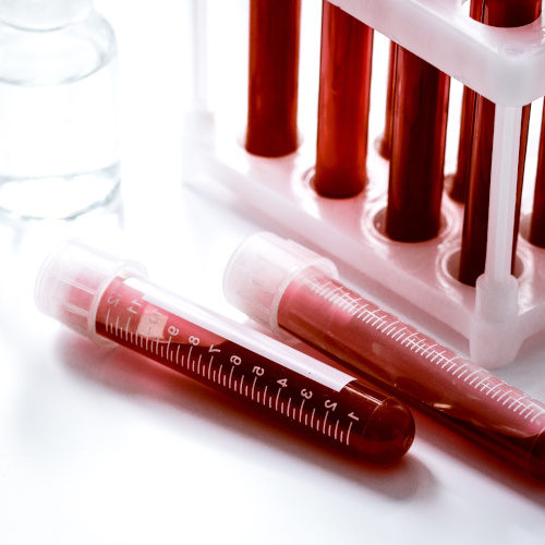blood sample - Diagnostics-4-Future - Biolago